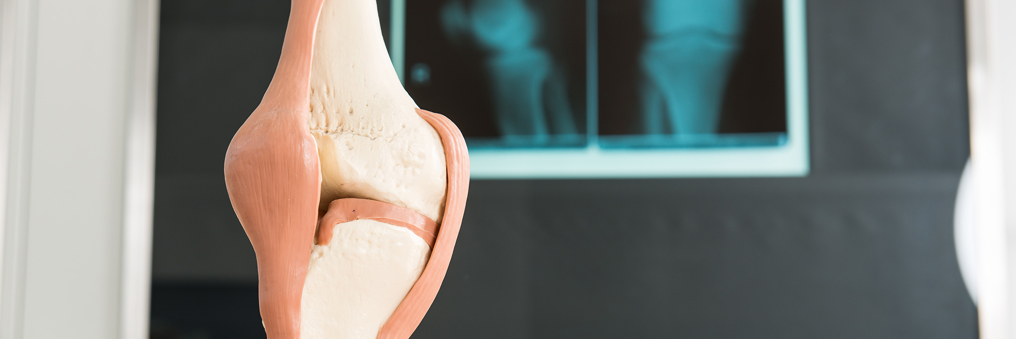 Who Is a Candidate for Knee Replacement Surgery?